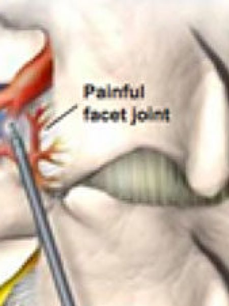 Radiofrequency ablation as a treatment for chronic pain